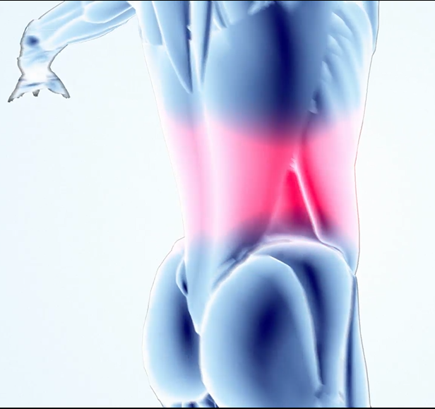 Spasms and Back Pain